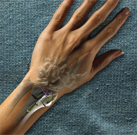 Picture of wrist reconstruction using medical devices from Wright Medical Technology.